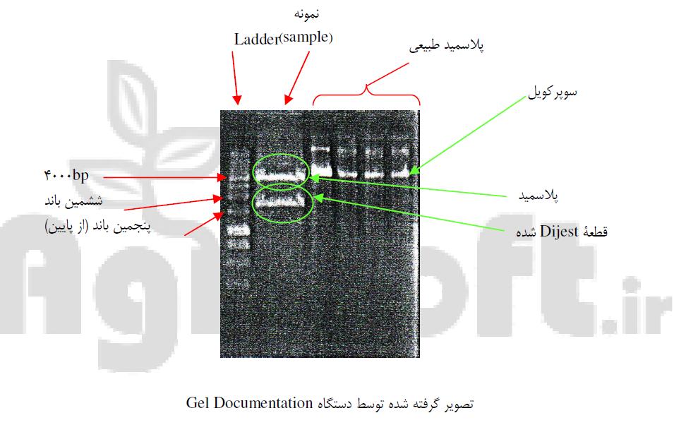 تصویر گرفته شده توسط دستگاه Gel Documentation